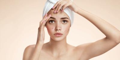 como eliminar las marcas de acne con cicatricure