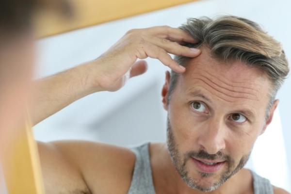 alopecia-sistema-gb